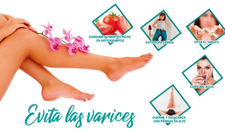 Cómo evitar la hinchazón de piernas si tienes varices y sobrepeso